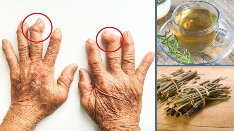 İltihaplı eklem romatizmasına ne iyi gelir, nasıl geçer? Saraçoğlu bitkisel kürü