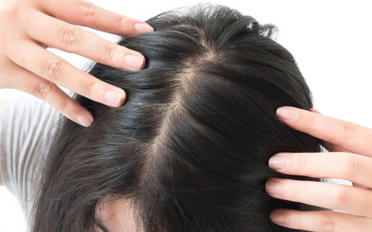 sac dokulmesi tedavisi Saçlarımız neden dökülür? 5 bilimsel yaklaşım!