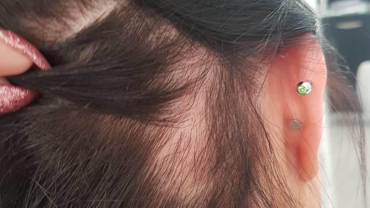 sac yolma hastaligi 2 Saç,kaş vekirpik yolma hastalığı ve tedavisi
