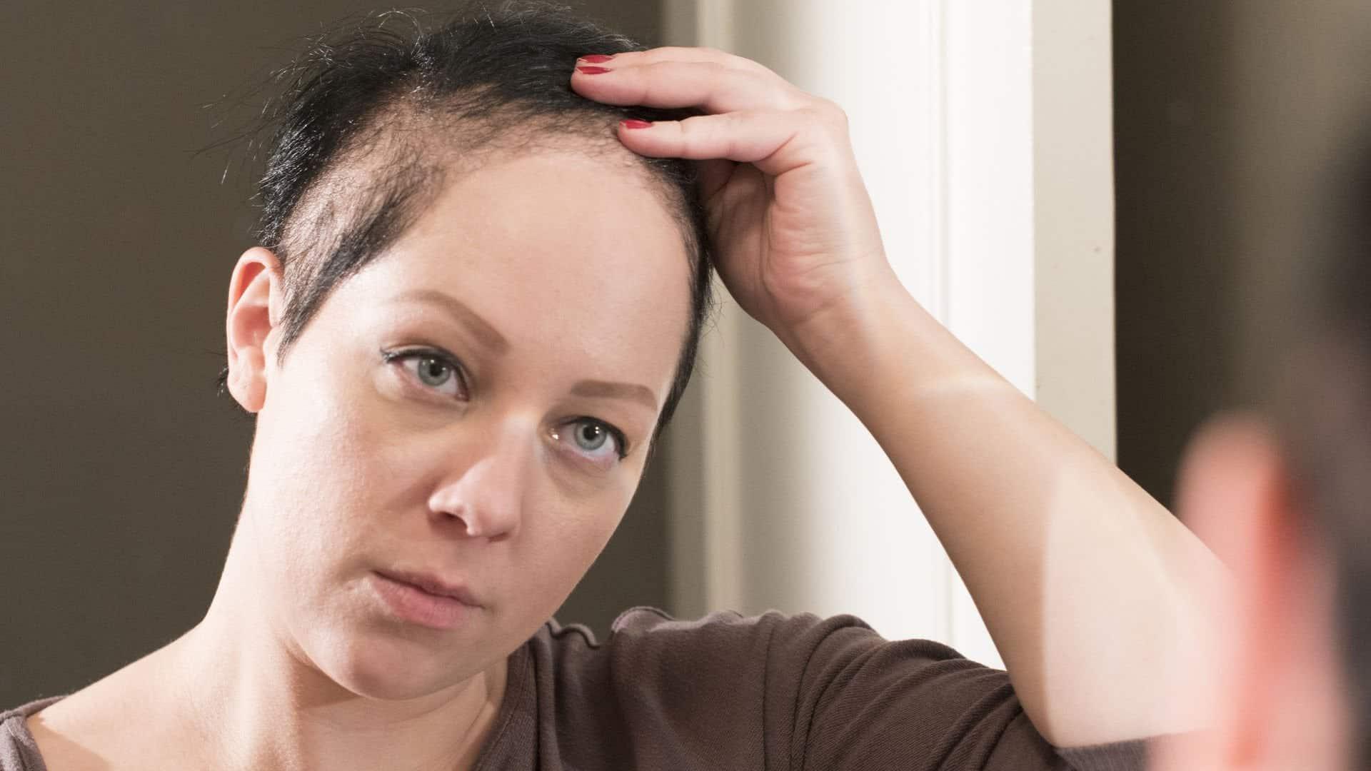 sac yolma hastaliginin tedavisi Saç,kaş vekirpik yolma hastalığı ve tedavisi