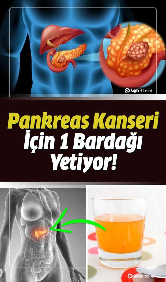 Pankreas Kanseri Belirtileri ve Evreleri Neler? Ameliyatı ve Bitkisel Tedavisi