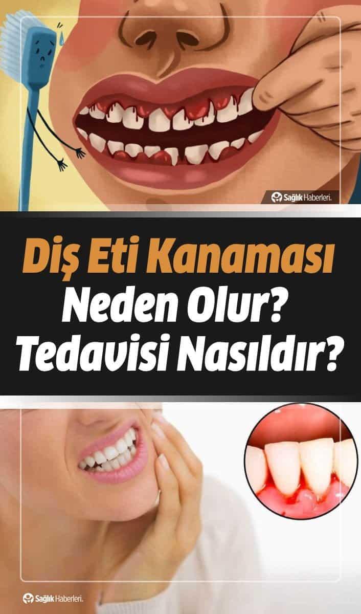 Diş fırçalarken sıkça kendini gösteren diş eti kanamalarının altında yatan birçok neden sıralanabilir. İşte bu nedenler dikkate alındığı zaman diş eti kanamasının nedenleri ve çözüm yollarına ilişkin olarak ayrıntılı bir şekilde bilgi aktarılması gerekmektedir...