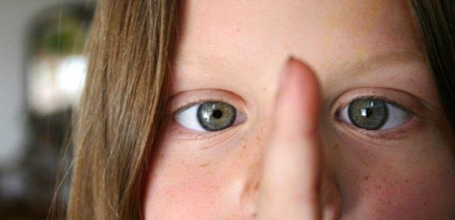 sasilik belirtileri Şaşılık Nedir? Neden Olur? Tedavi Yöntemleri Nelerdir?