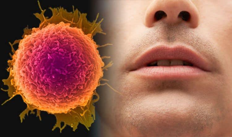 Ağız kanseri nedenleri, belirtileri ve evreleri neler? Bitkisel tedavisi