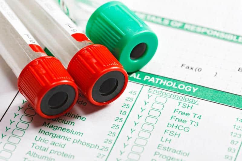 Kan tahlili sonuçları ne anlama geliyor?