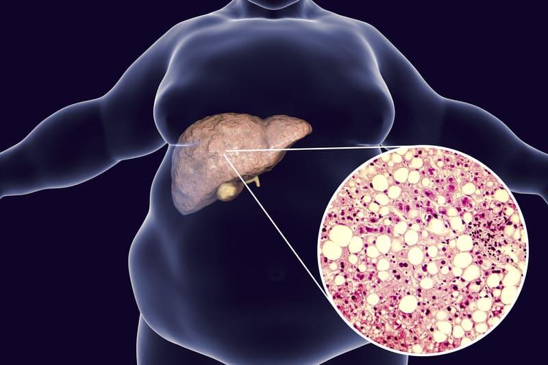 Karaciğer yağlanmasını önleyen 4 sağlıklı besin!