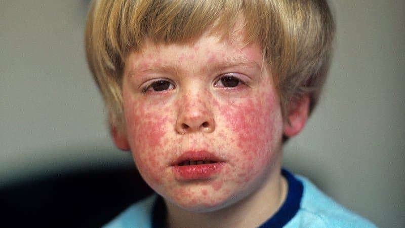 Kızamık hastalığı ne kadar tehlikeli?