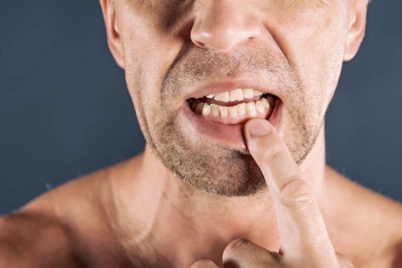 Diş eti ağrısına neler sebep olabilir? Diş eti ağrısı nasıl geçer? Tedavisi