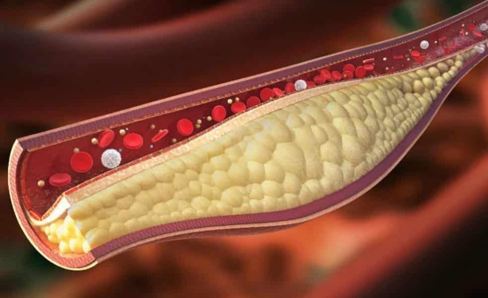 Evde kolesterolü düşürmek için neler yapılabilir?