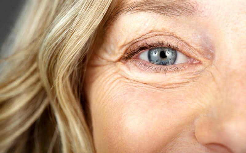 Göz altı torbaları neden olur, ne iyi gelir? Bitkisel tedavisi