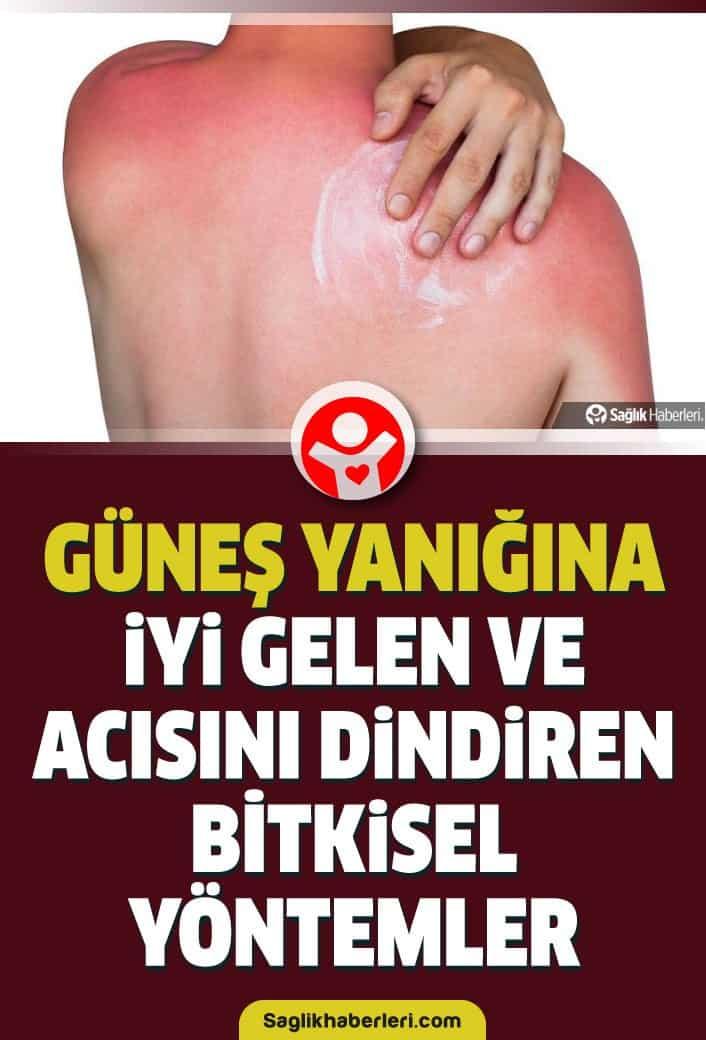Güneş yanığı ve acısı nasıl geçer, ne iyi gelir, bitkisel tedavisi