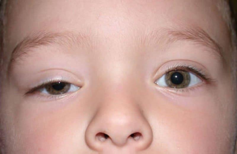 Bebeklerde göz kapağı düşüklüğü neden olur, nasıl geçer evde? Bitkisel tedavisi