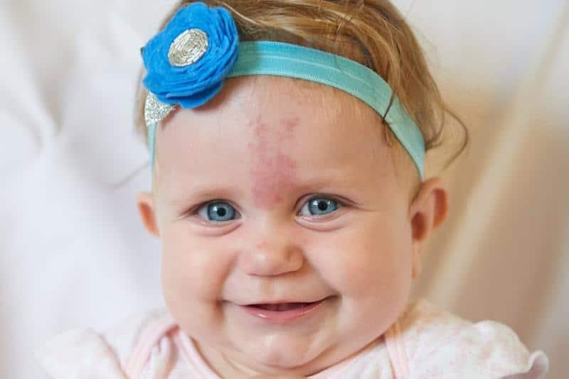 Doğumsal bebeklik lekelerinin lazerle tedavisi mümkün müdür?