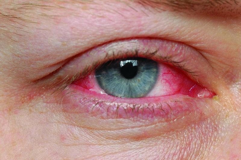 Pembe göz hastalığından kurtulmak için 5 öneri!