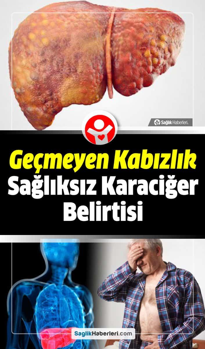 Sağlıksız karaciğerin belirtileri nelerdir?