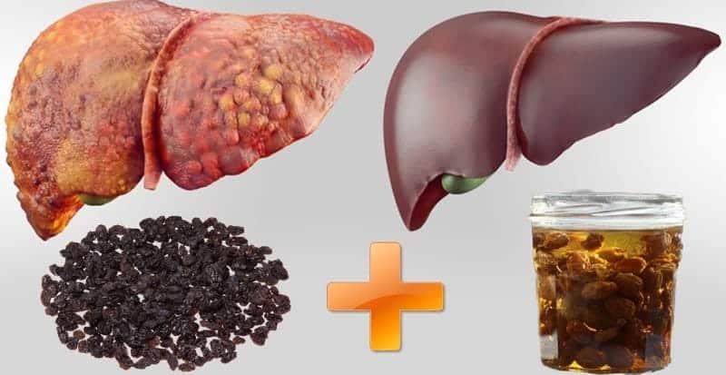 Kuru Üzüm Suyuyla Dört Günde Karaciğer Temizliği