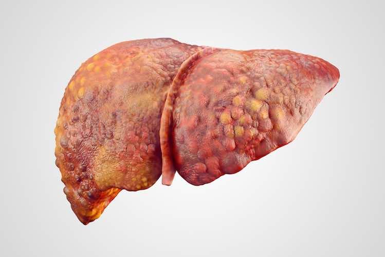 Karaciğerinizin Düzgün Çalışamadığının Az Bilinen Diğer İşaretleri