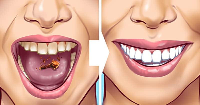 Karanfil Karışımını Dişlerinize Sürün