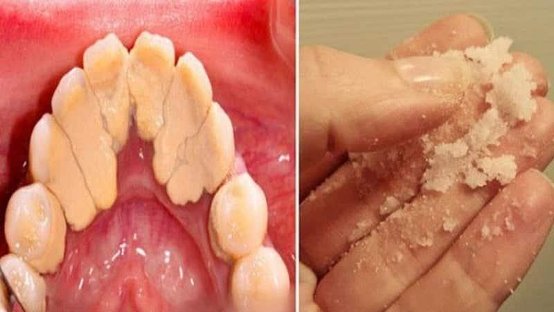 Plak ve tartarlar doğal yollarla dişlerden nasıl çıkarılır?