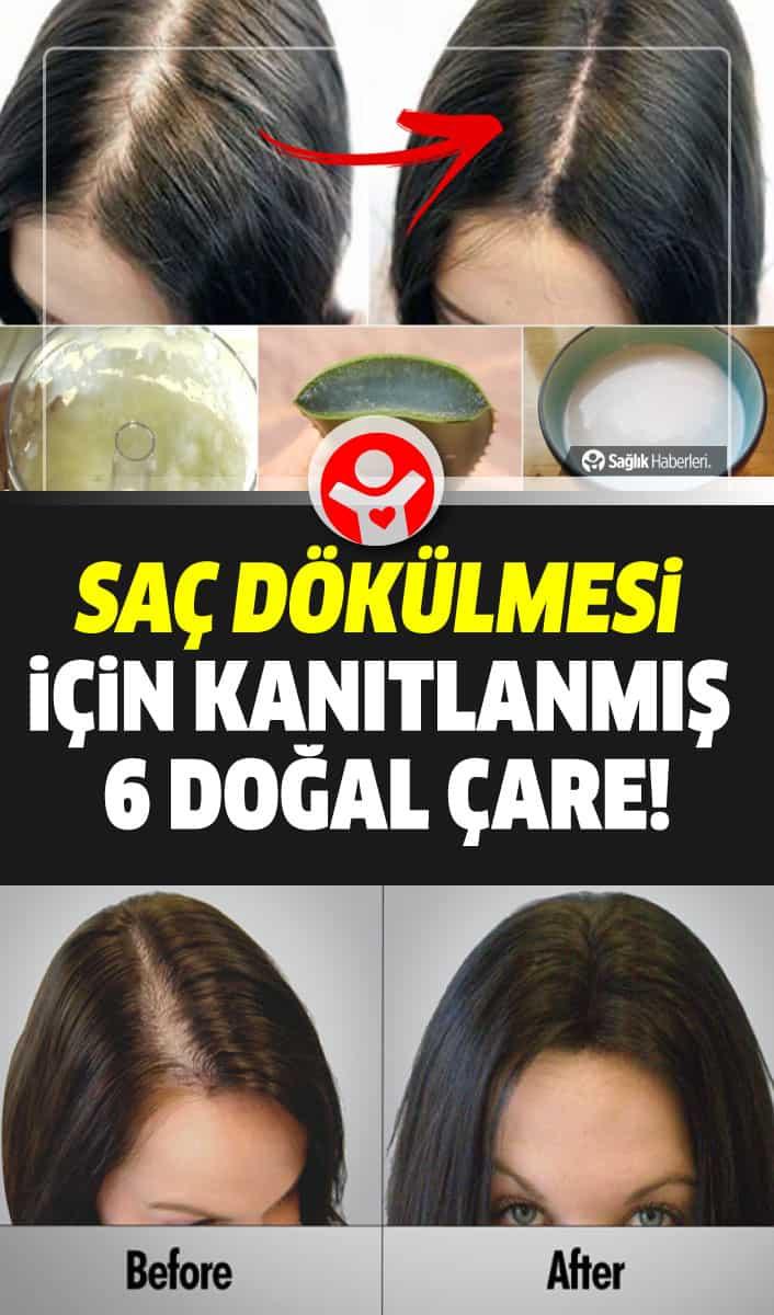 Saç dökülmesi için kanıtlanmış 6 doğal çare