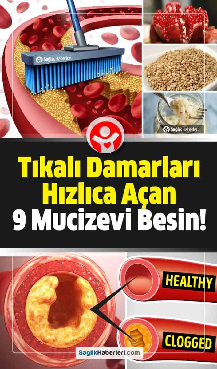Tıkalı damarları hızlıca açan en iyi 9 besin!