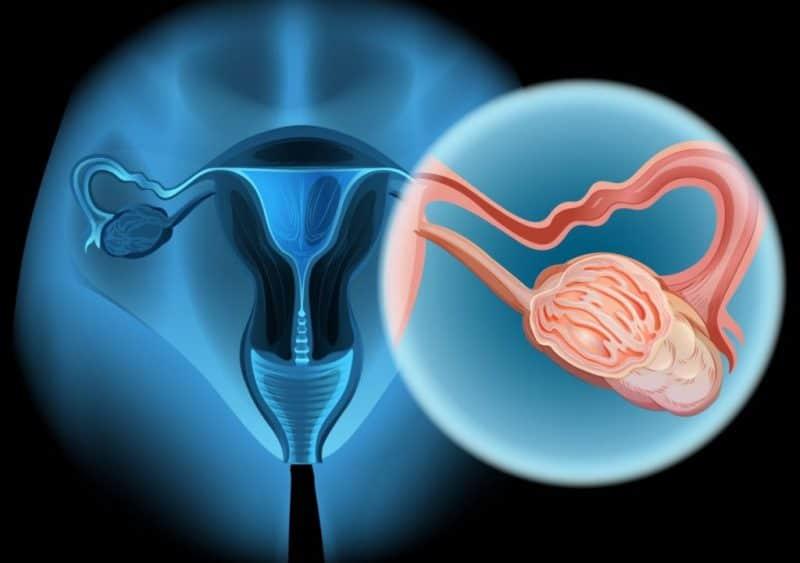 Tüm kadınların bilmesi gereken yumurtalık kanserinin 7 erken belirtisi