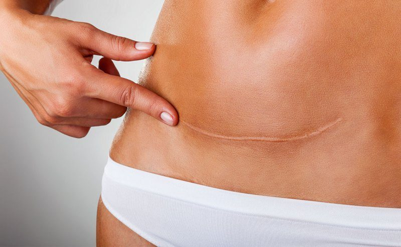 Ameliyat sonrası dikiş izleri neden olur, nasıl geçer?