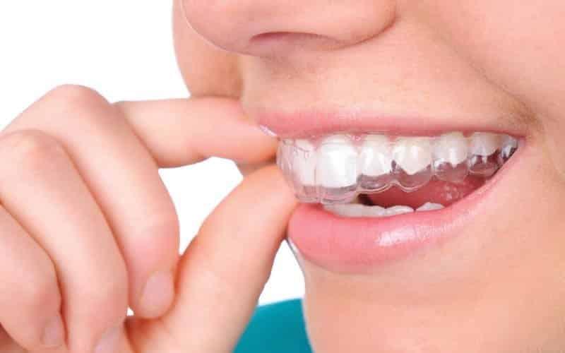 Görünmeyen diş teli tedavisi nedir, nasıl yapılır?