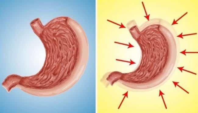 Ameliyat olmadan, midenizi doğal yollarla küçülterek kilo verin!