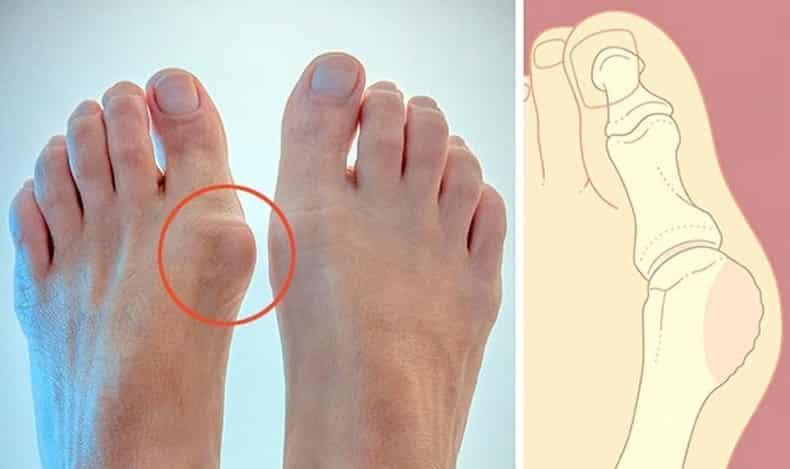 Ayaklarda kemik büyümesi neden olur, nasıl önlenir?