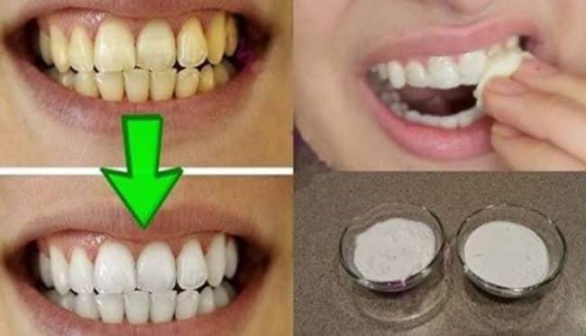 Dişlerinizi kısa sürede beyazlatan ev yapımı bitkisel karışım!