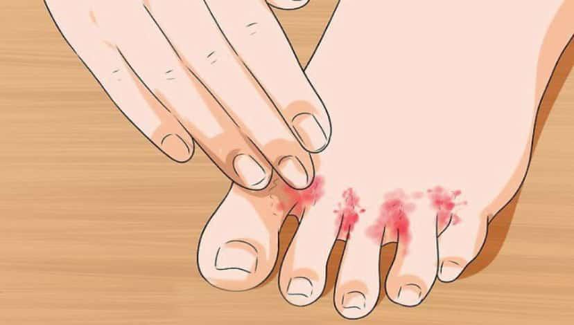 Ayak mantarı neden olur, bulaşıcı mıdır? Evde bitkisel tedavisi