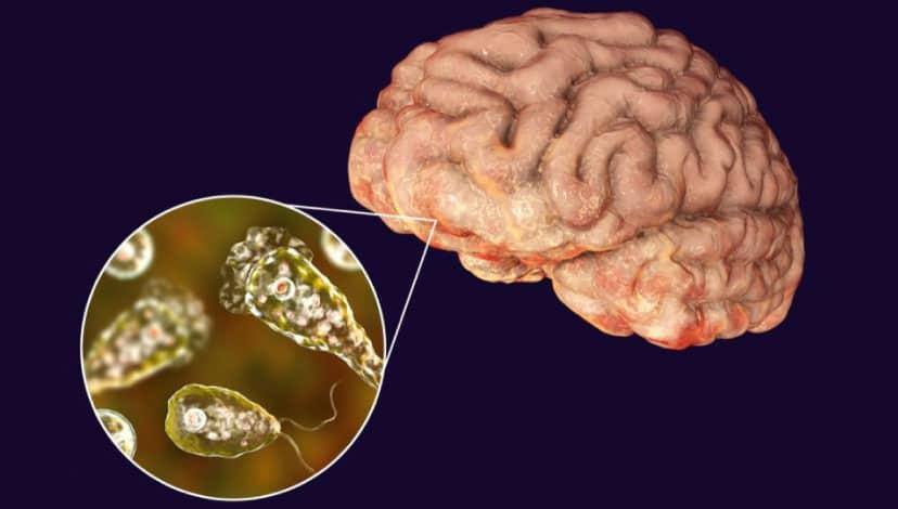 ABD'de musluk suyunda beyin yiyen mikrop tespit edildi
