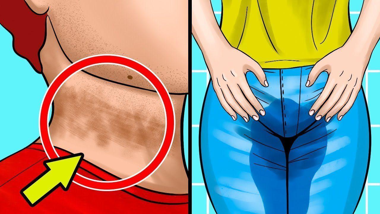 bu 10 belirti gizli seker hastaligina isaret ediyor onlem alin 1 Bu 10 belirti gizli şeker hastalığına işaret ediyor. Önlem alın!