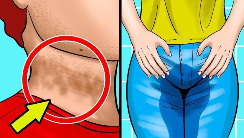 Bu 10 belirti gizli şeker hastalığına işaret ediyor. Önlem alın!