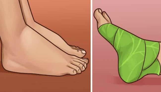Lahanayı ayaklarınıza sarmanın şaşırtıcı faydaları