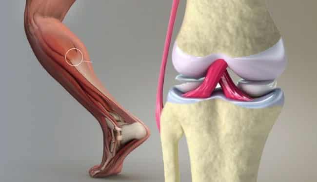 Sadece 7 günde kemik, tendon ve eklem ağrılarını yok eden doğal kür!