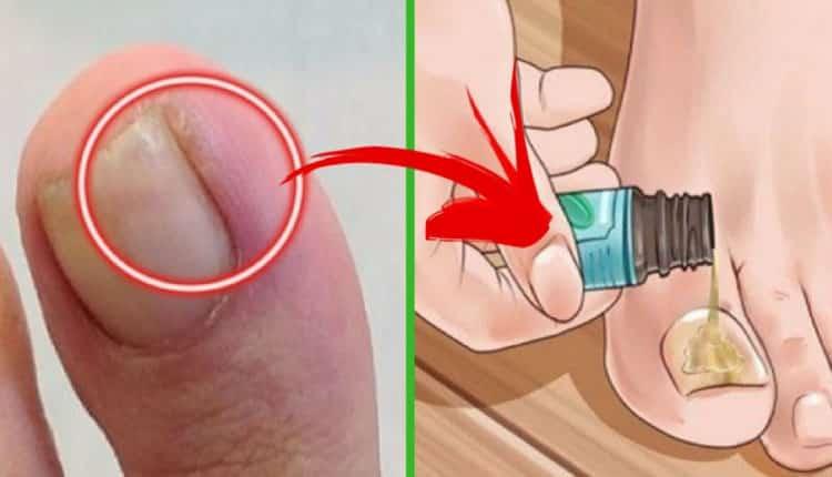 Batık tırnaklar neden olur? Batık tırnakları tedavi etmek için doğal tarif!