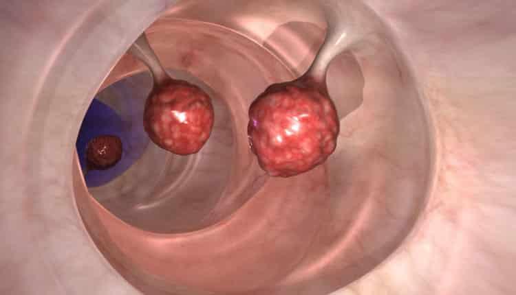 Sadece 2 günde kolon kanserinin % 93'ünü öldürebilir!