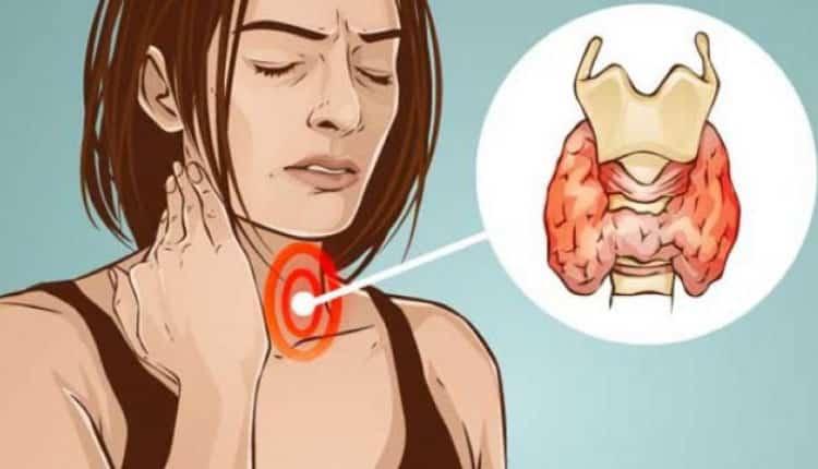 Tiroid sorununuz olduğunu gösteren 10 işaret ve ondan kurtulma yolları