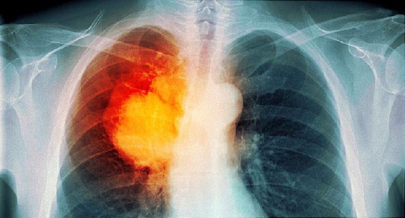 Covid-19 virüsü akciğer kanserinde erken tanıyı engelliyor!