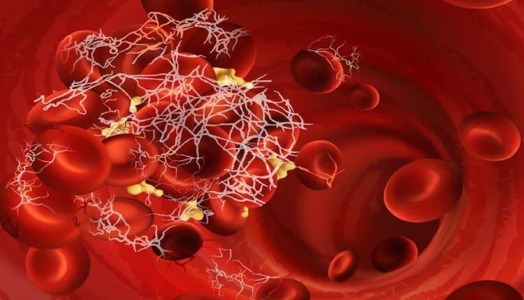 Covid-19 virüsü damarlarda pıhtı oluşum riskini artırıyor