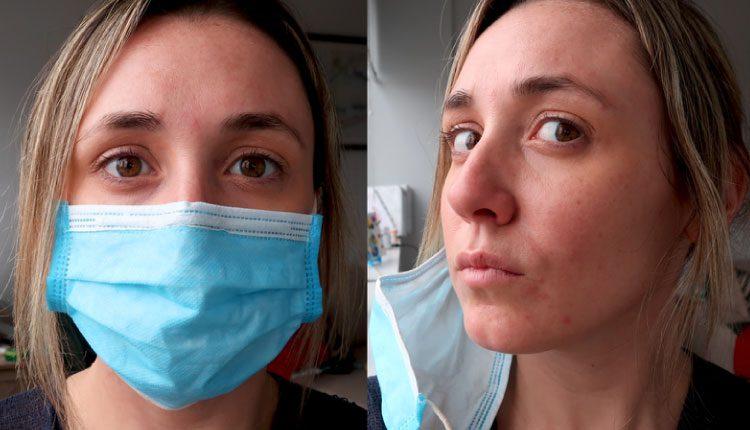 Covid-19 virüsünden koruyan maskelerdeki elastik bantlar egzamaya neden olabilir