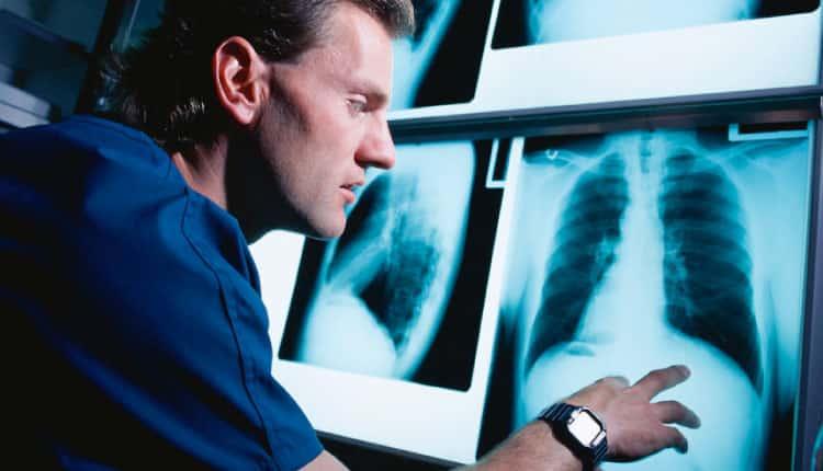 Dünya radyoloji günü ne ifade eder?