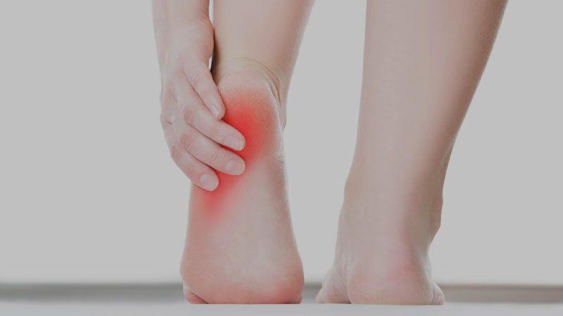Topuk dikeni nedir, nasıl iyileşir? Tedavisi ve doğal çözümler