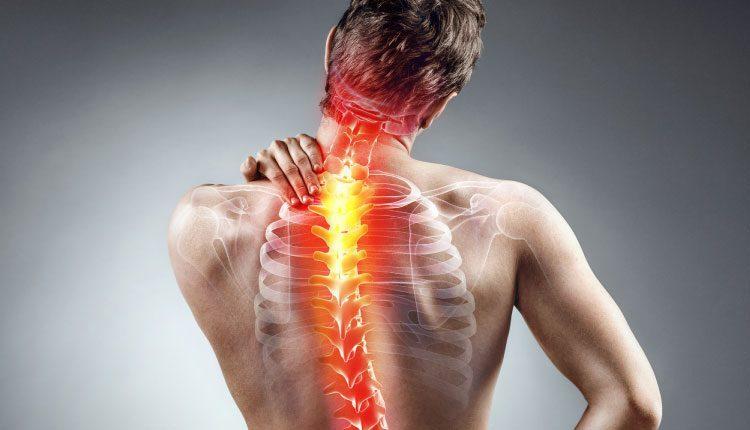 Ankilozan spondilit (Bechterew) belirtileri, nedenleri ve tedavisi