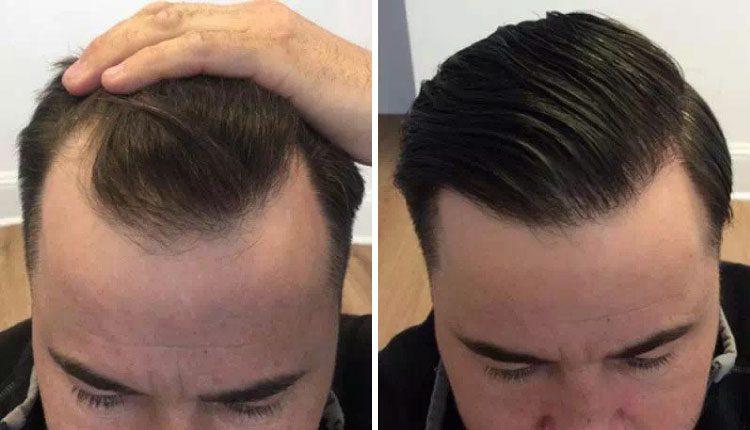 FUE saç ekimi nedir, avantajları neler, nasıl uygulanır?