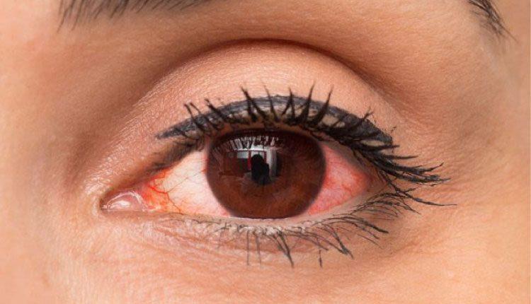 Göz kızarıklığı sebepleri nelerdir? Nasıl tedavi edilir?