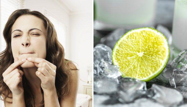 Limon ve buz ile sivilce maskesi nasıl yapılır?