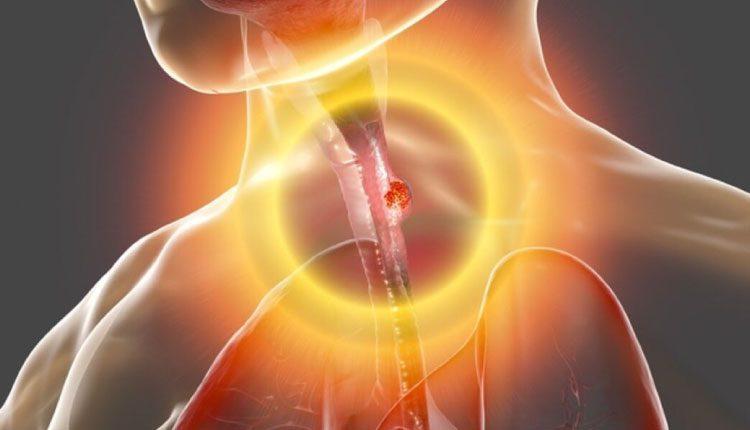 Özofagus (yemek borusu) kanseri nedir, belirtileri neler? Tedavisi